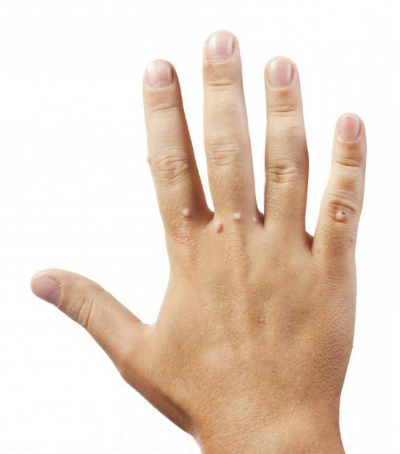 Бородавки на руках у детей удаление лазером