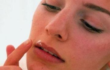 Лечение папиллом на слизистой рта народными средствами