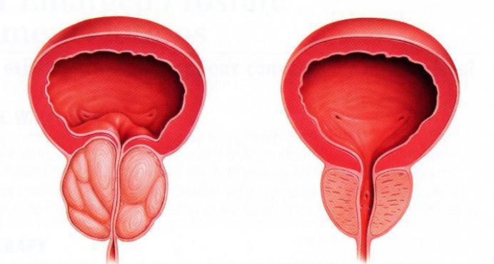 заболевания мочеполовой системы у мужчин