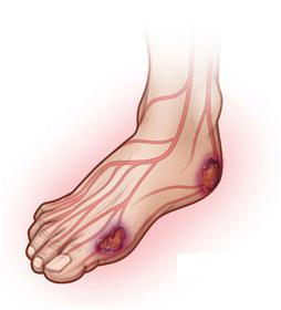 diabetic foot symptoms