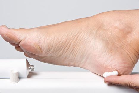 diabetic foot prevention