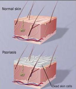pervie-simptomi-i-priznaki-psoriaza