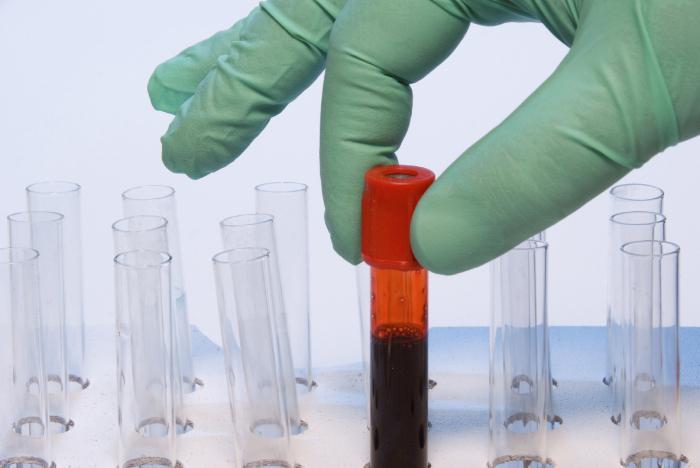 группа крови резус фактор отрицательный