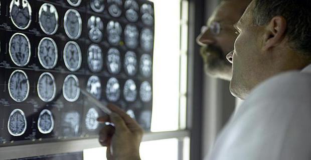 болезнь боковой амиотрофический склероз