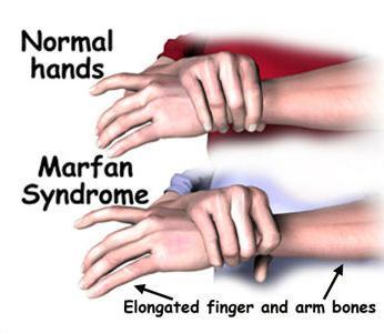синдром марфана симптомы