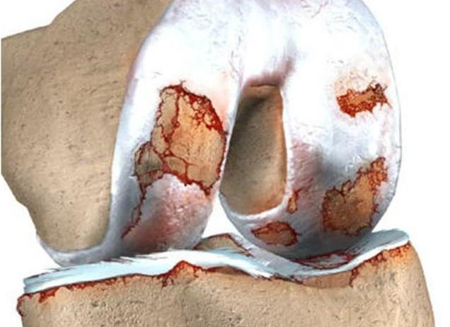 эффективные средства от артрита коленного сустава