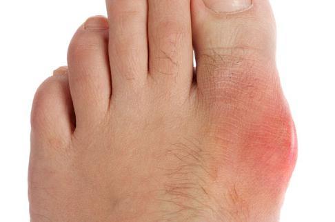 Allopurinol for gout