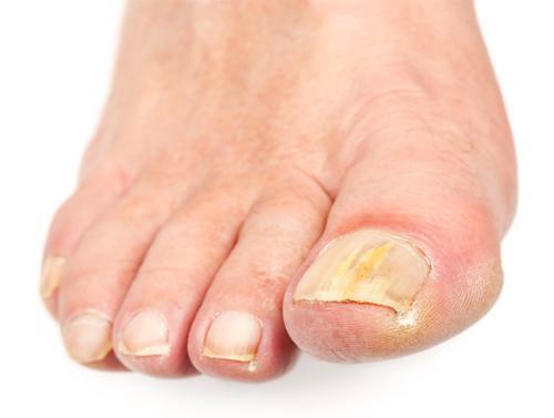 Как лечить грибок ногтей на ногах медикаменты