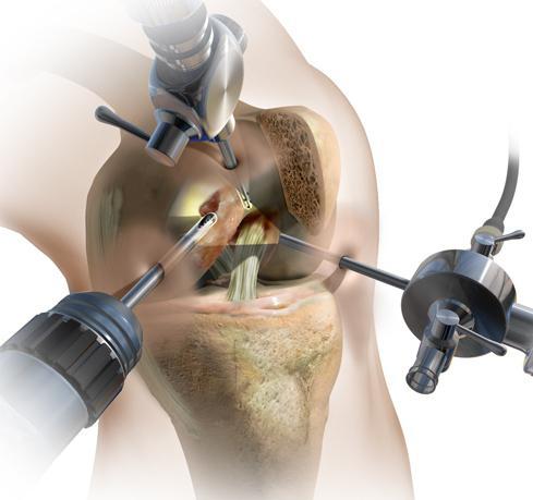 Изображение - Артроскопия коленного сустава лечение 697707