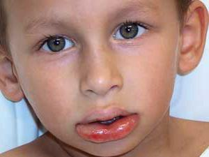 angioedema what is it