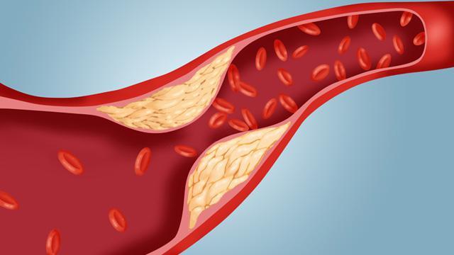 вызывает холестерин в крови