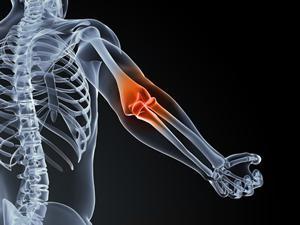 Бурсит локтевого сустава длительность лечение
