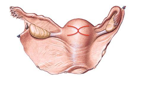 amenorrhea dysmenorrhea