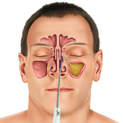 Гной в носу лечение в домашних условиях