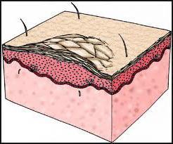 Народные средства для лечения псориаза на руках