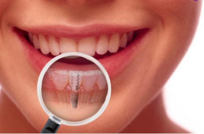 After dental implantation
