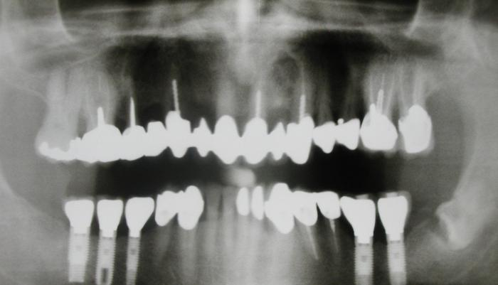 How much is the implantation of one tooth