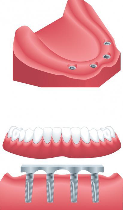 Dentistry dental implants