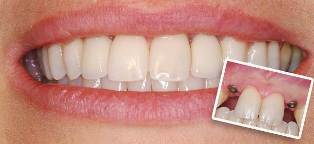 Сделать снимок зуба в химках