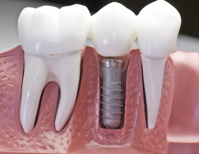 Stages of tooth implantation