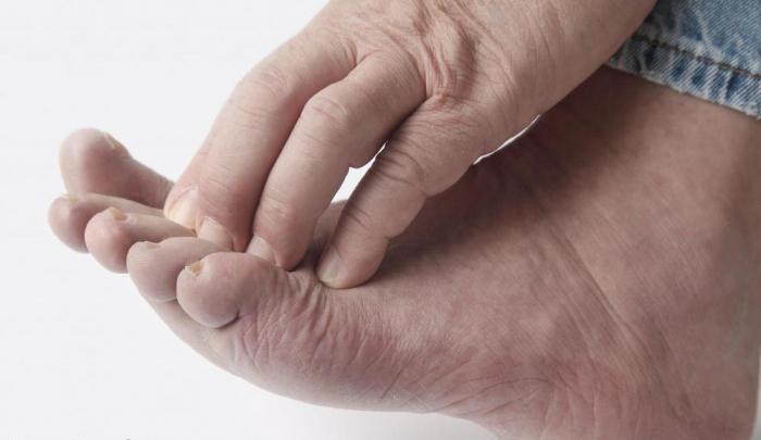 Последствия экземы на ногах 13