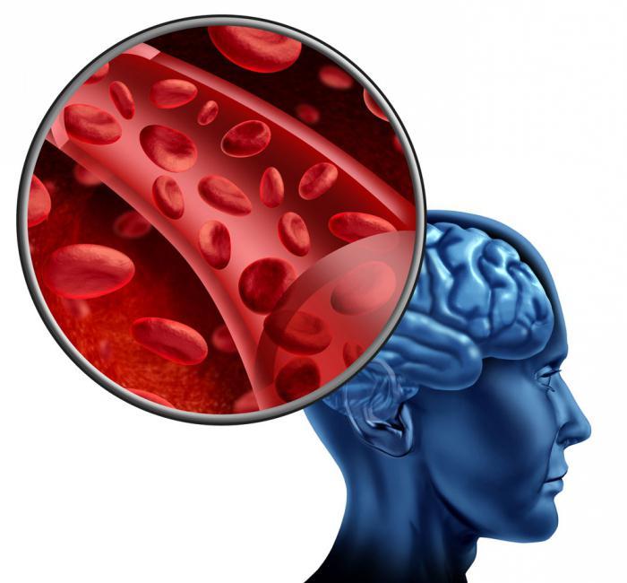 Цереброваскулярная болезнь мозга