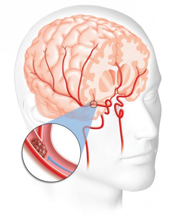 Инсульт при внутричерепном давлении