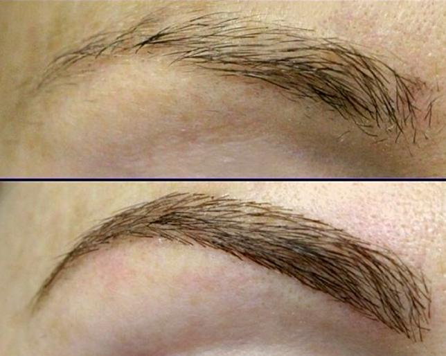 brow extensions before and after