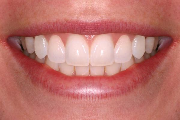 панорамный снимок зубов на пленке