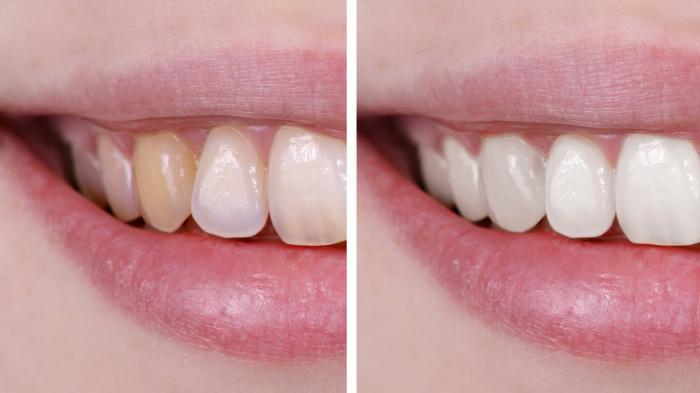 как отбелить зубы в фотошопе