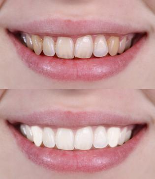 как в фотошопе осветлить зубы