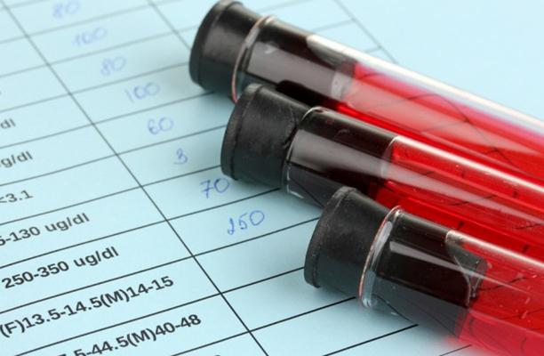 ПЦР диагностика инфекций. Инвитро