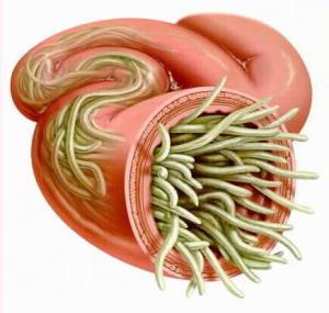 паразиты обитающие в кишечнике человека