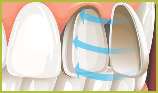 Установить виниры на кривой зуб