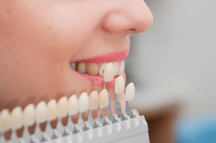 виниры пластинки на зубы отзывы