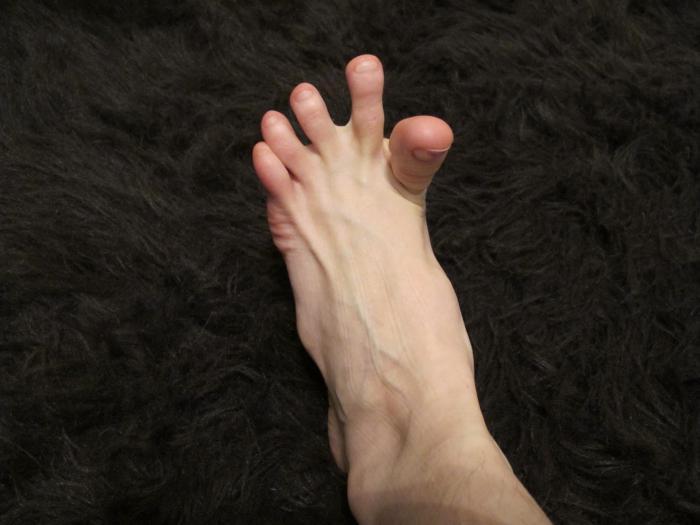 Судороги в ногах при варикозе ночью
