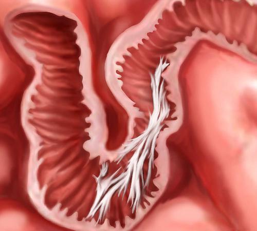 что такое спайки кишечника фото