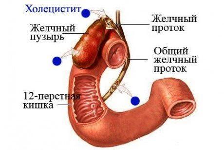дифференциальный диагноз хронического калькулезного холецистита