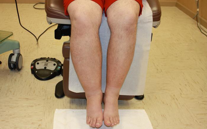 lower limb lymphostasis