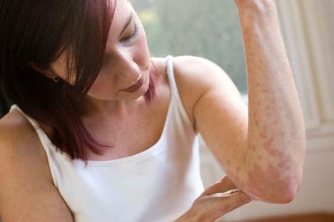 мазь от аллергии на коже форум