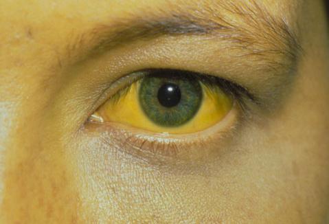 Токсоплазмоз симптомы у человека фото