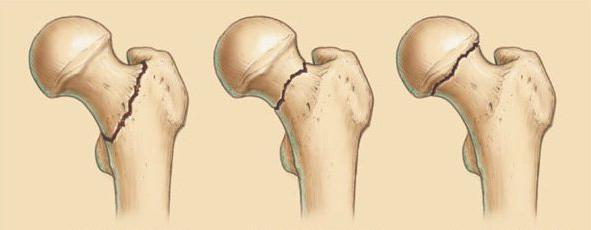 Перелом тазобедренного сустава в пожилом возрасте мази при артрозе тазобедренного сустава