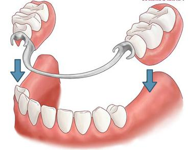 Пластмасса для протезных зубов