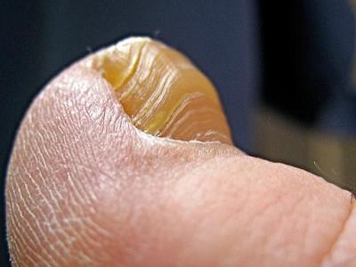 Грибок на ногтях пальцах ног
