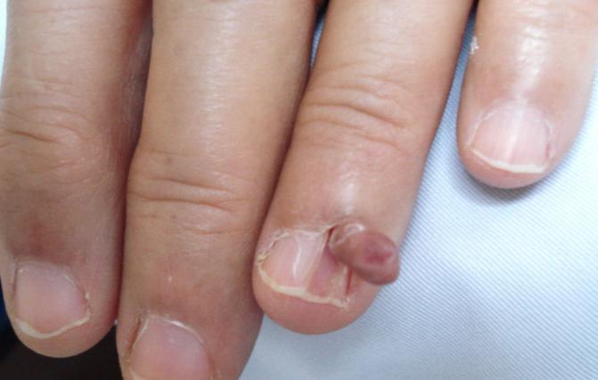 Лечение купероза на лице троксевазин отзывы