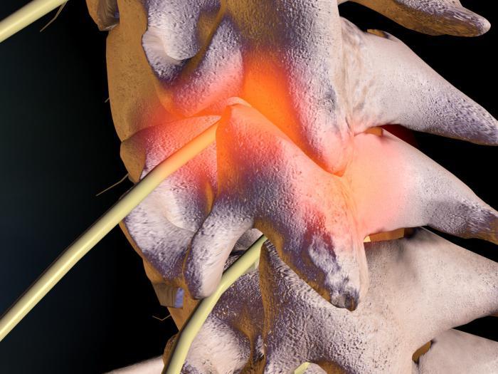 Спондилез шейного отдела позвоночника - какие симптомы и причины