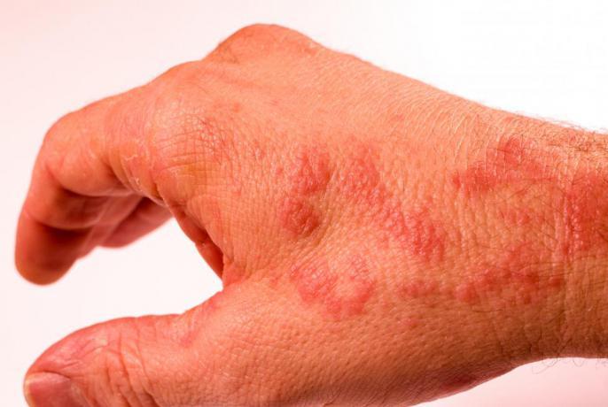 Тата атопический дерматит