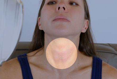 Щитовидная железа увеличена: причины, лечение