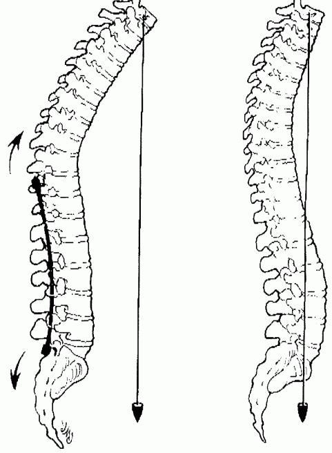 human thoracic spine