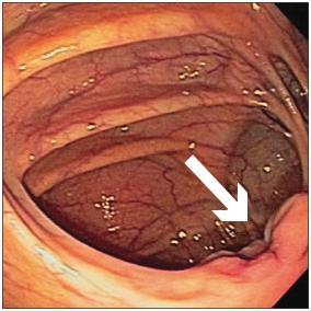 Какие глисты могут быть у человека в кишечнике